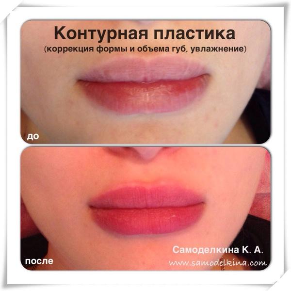 Увеличение губ троксевазин